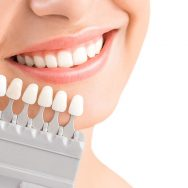 Getting An Dental Implant Crown