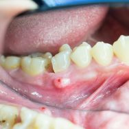 What Is The Best Amoxicillin For Tooth Infection