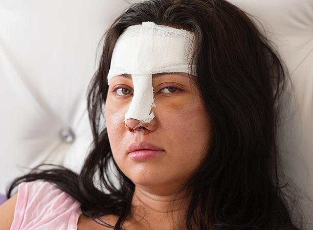 plastic surgery nose