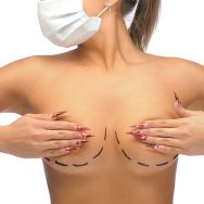 Breast Reduction Surgery Scars