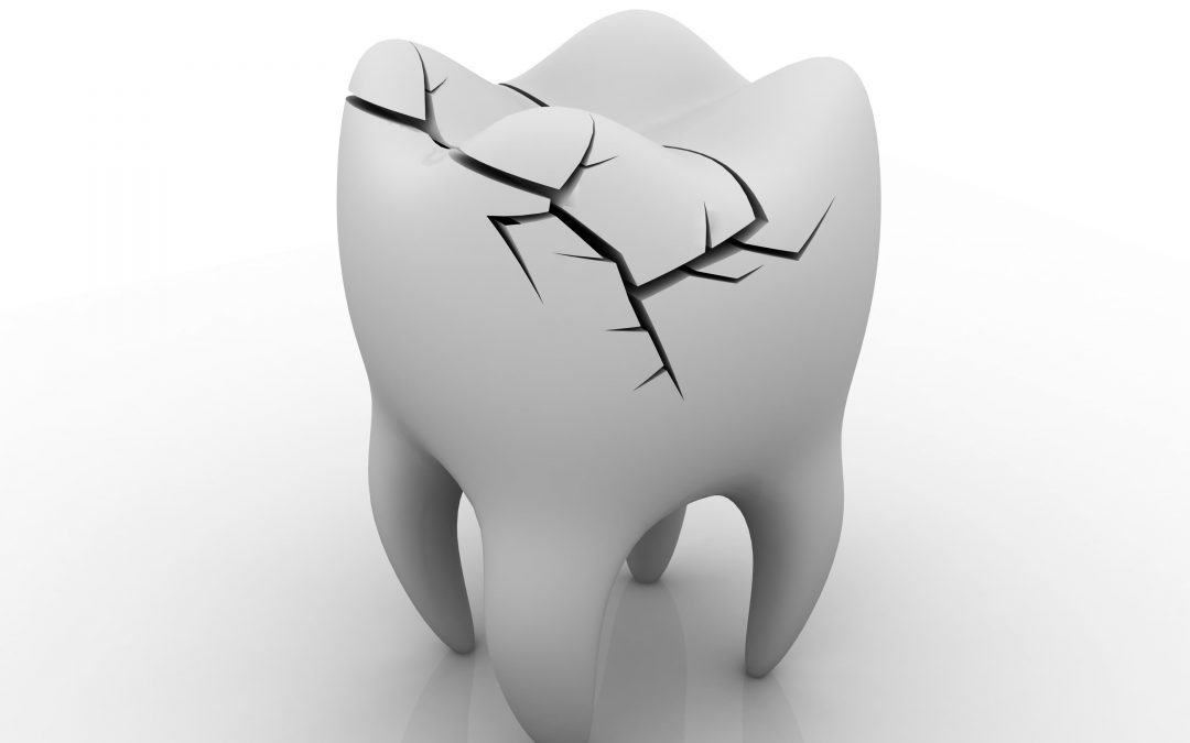 Everything To Know About Cracked Front Teeth