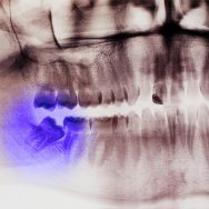 Does medical insurance cover wisdom teeth removal?