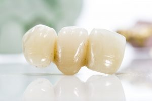 problems with dental bridges