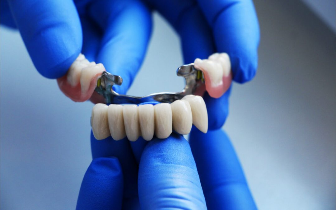 Problems With Dental Bridges