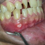 Forms of gum injury and how to treat them