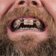 Braces with Missing Teeth