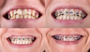teeth before and after braces