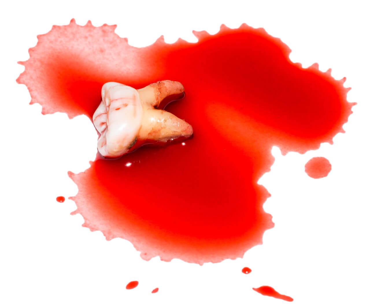 dental avulsion