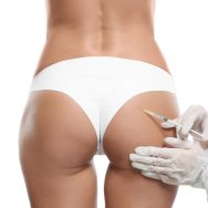 Dermal Fillers For Buttocks