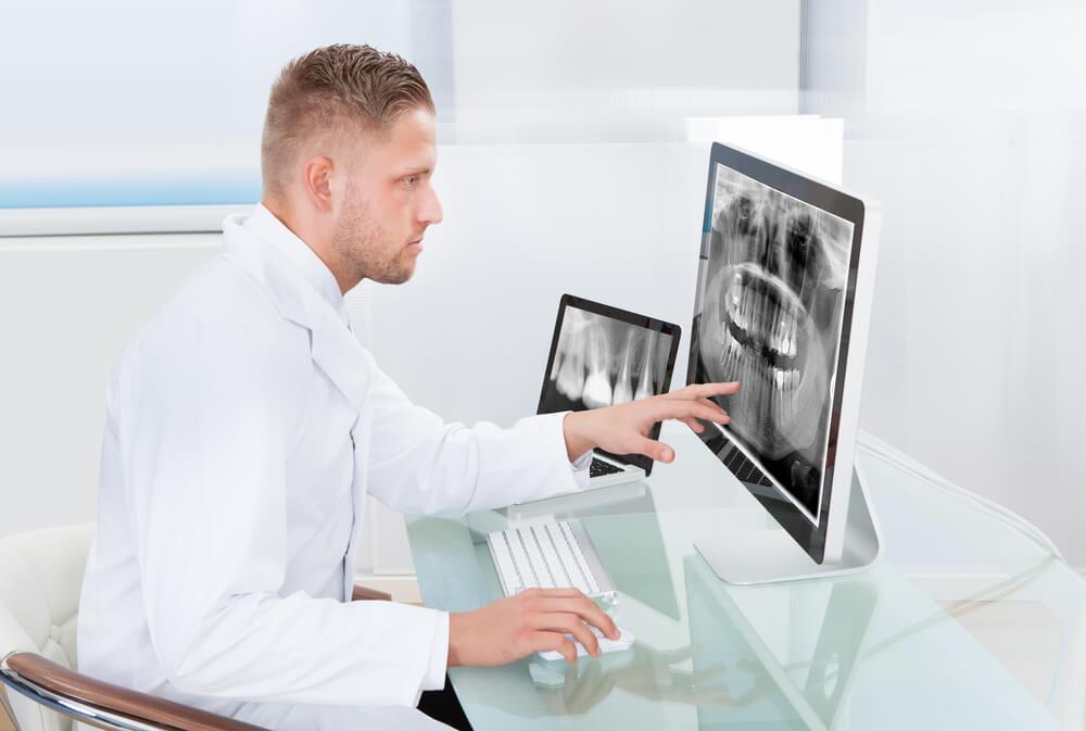digital dental x ray benefits for dentistry future
