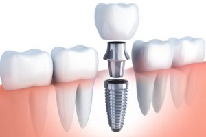 dental implant structure