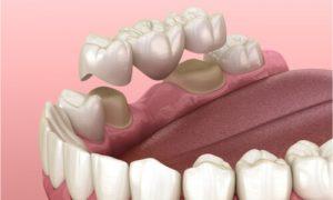 sample dental bridge for back teeth
